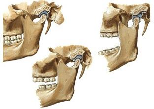 disfuncao-temporo-mandibular-dtm-atm