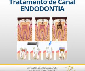Tratamento de Canal – Endodontia
