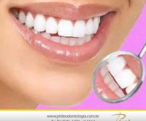 Você é um candidato para o clareamento dental?